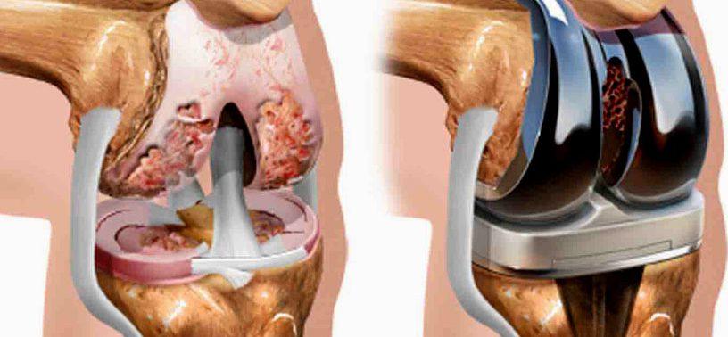 Эндопротезирование суставов: что нужно знать, прежде чем ложиться на операцию?