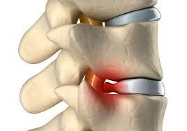 Грыжа межпозвоночного диска: симптомы, причины, лечение