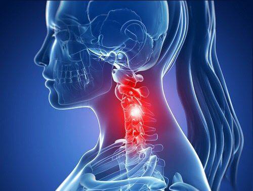 Спондилоартроз шейного отдела позвоночника. Чем опасен, как лечить?