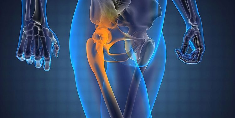 Боль в тазобедренном суставе отдает в ногу