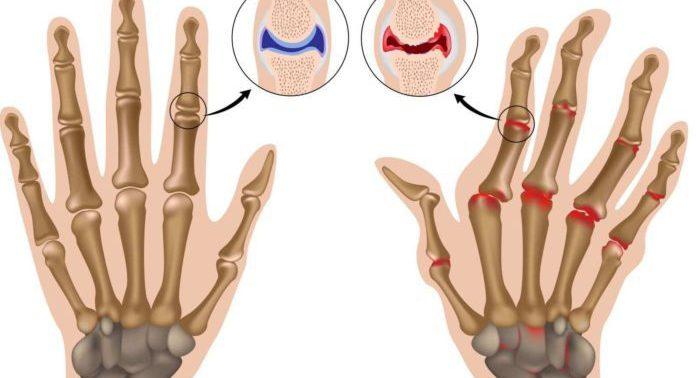 Найден новый способ лечения артрита