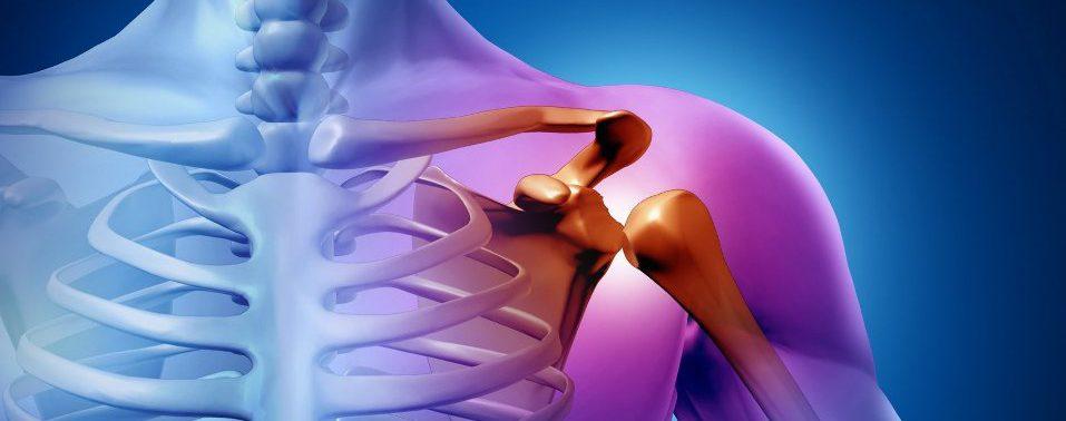 Как вылечить периартрит плечевого сустава? Артрит, Артроз !