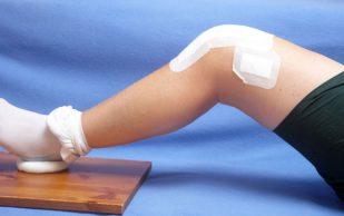 Применение соли для лечения артрита и артроза