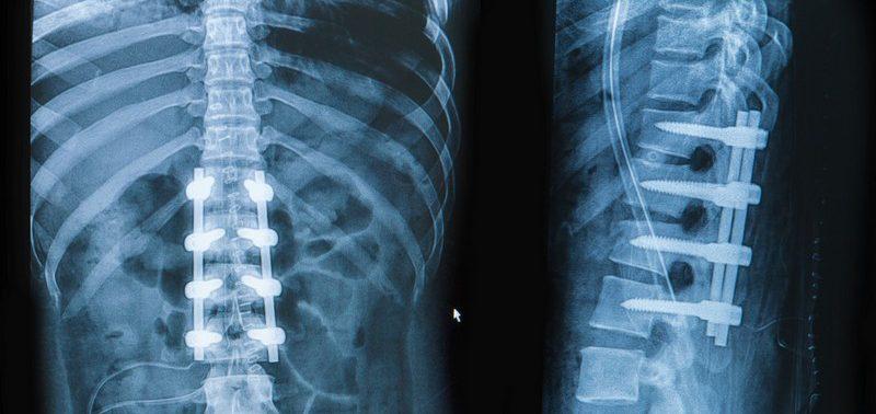 Перелом позвоночника — вопиющий случай из медицинской практики