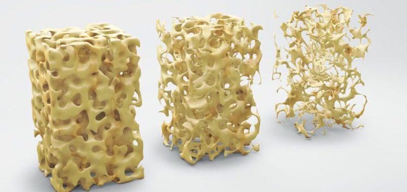 Что такое остеопороз, симптомы и причины болезни костей