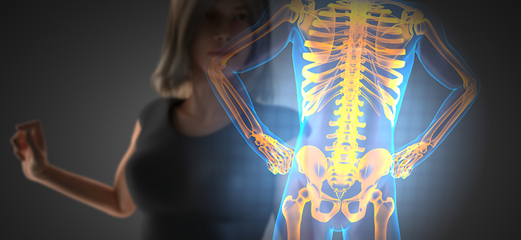 «Стеклянные кости»: что такое остеопороз и почему он возникает?