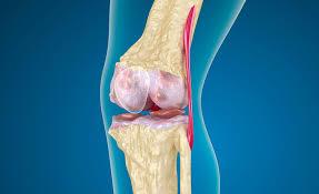 Артроз коленных суставов, как с ним жить, чем облегчить симптомы?