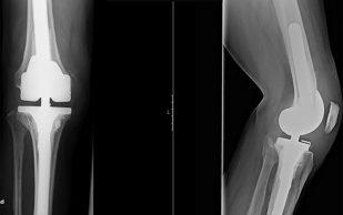 Онлайн-тест предскажет успех операции по замене коленного сустава