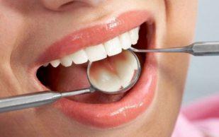 Как избавиться от налета на зубах, советы и техники