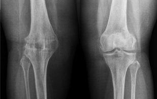 4 степени Артроза коленного и тазобедренного сустава. Как лечить Артроз на разных стадиях