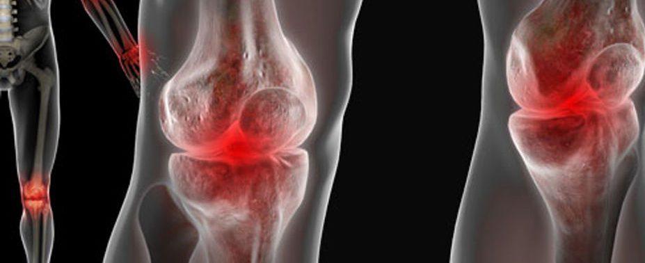Про суставы и боль в суставах. НАКИПЕЛО