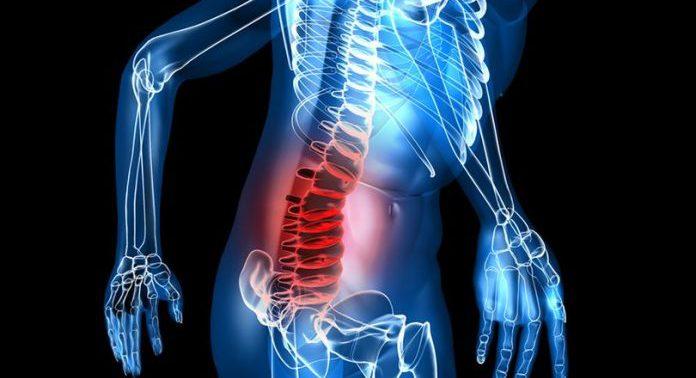 Какие симптомы бывают при костных шпорах в спине или шее