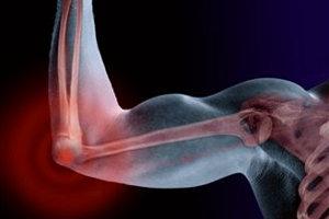 Биогель полностью восстанавливает суставы