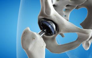 Врачи усовершенствовали операции по пересадке бедренных суставов