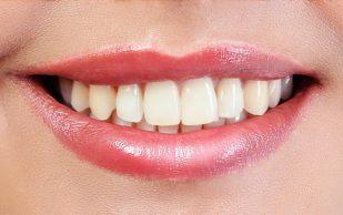 Чем опасно домашнее отбеливание зубов — риски и меры предосторожности