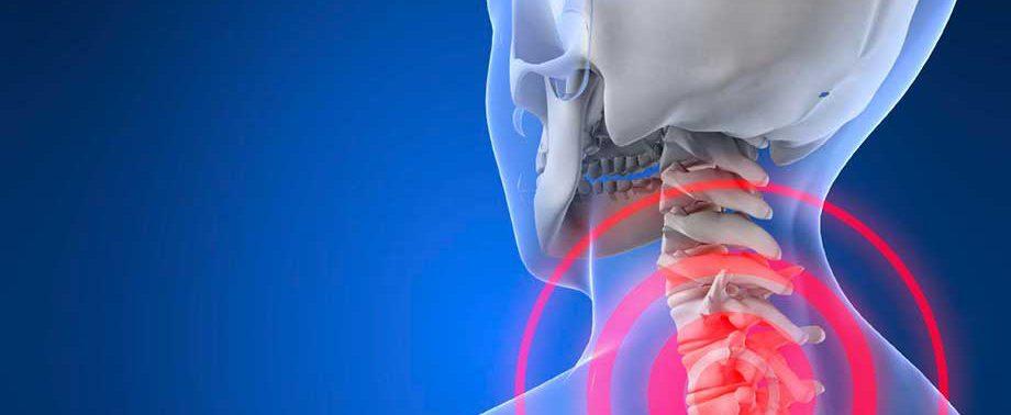 Что делать, чтобы остановить шейный остеохондроз?