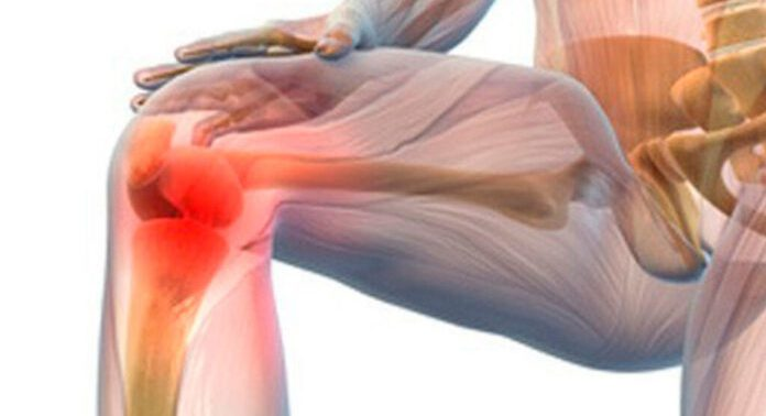 Медики рассказали, как предотвратить артрит и артроз