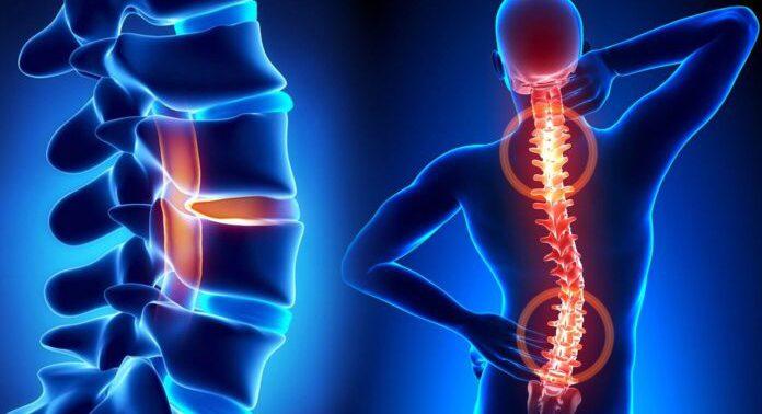 Появилась новая методика лечения остеохондроза