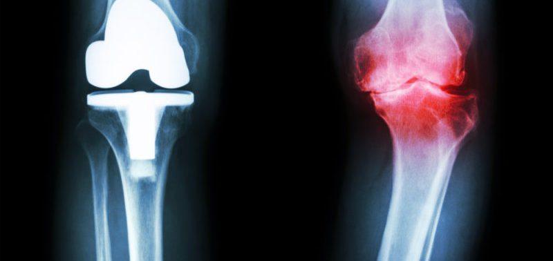 Одиночество может быть причиной развития остеоартрита