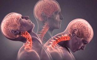 Два рецепта, которые помогут снять боль при шейном остеохондрозе