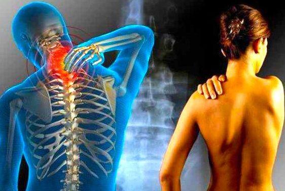 Причины болей в шее. Обзор