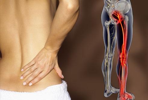 Поясница: все о корешковой боли