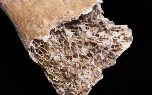Остеопороз: что должен знать каждый больной диабетом или преддиабетом