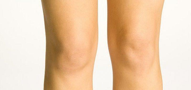 Всего одна операция избавит от кривых коленей