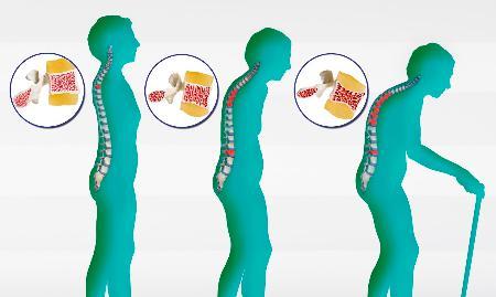Остеопороз опасен для жизни! Как предотвратить болезнь? Лучшие продукты
