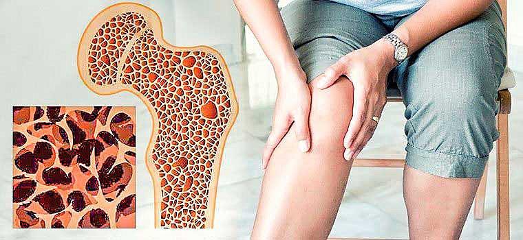 Есть ли у вас риск остеопороза?