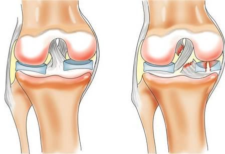 Вредные советы. Как довести суставы до артроза. 5 способов