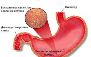 Хронический и атрофический гастрит: причины, симптомы, лечение
