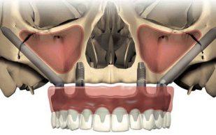 Скуловая имплантация — Zygoma