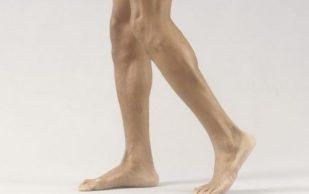 Болят колени? Возможно, дело в стопах