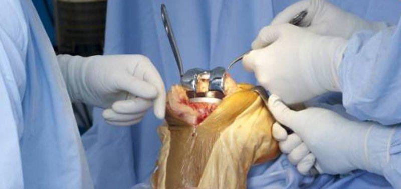 Пластырь из стволовых клеток поможет лечить колени