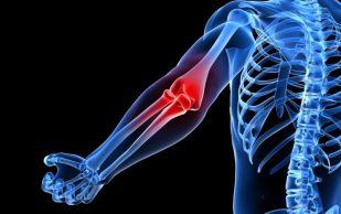 Пять простых методов, чтобы сохранить суставы здоровыми
