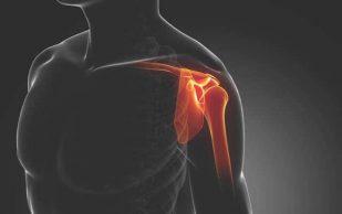 Растяжение связок плечевого сустава — в чем причины и какое лечение?