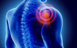 Какие препараты могут помочь при лечении артроза?