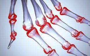 Натуральные продукты, которые подавляют боль при артрите