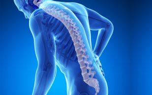 Симптомы остеопороза, которые нельзя недооценивать