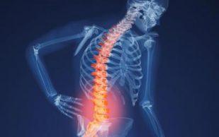 7 признаков остеопороза