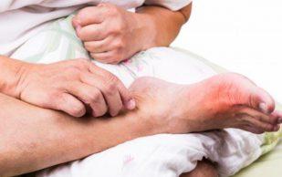 Подагра увеличивает риск заболевания почек