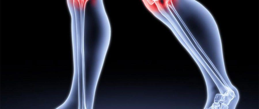 Способы лечения артроза