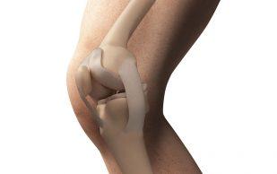 Плотность кости определяет риск возникновения рака молочных желез