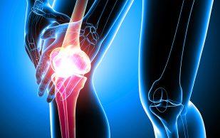 Хроническое заболевание сустава-артроз