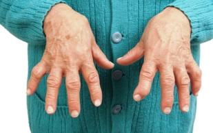 Артрит: избегайте пяти продуктов, усиливающих воспаление в организме