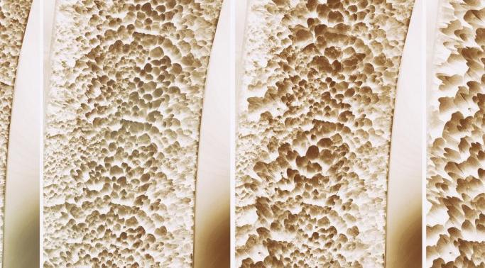 Профилактика остеопороза: 5 продуктов для здоровья костей