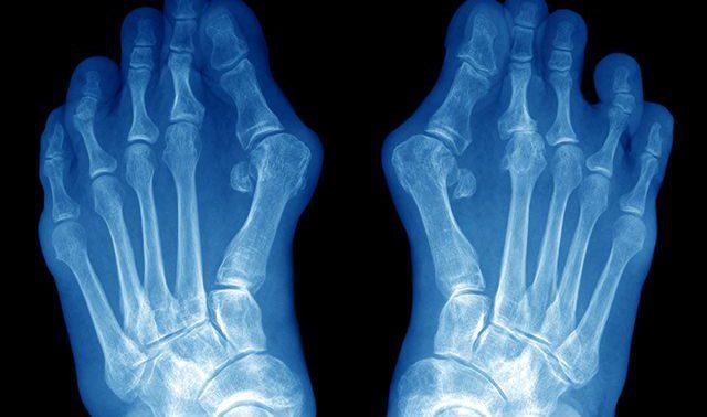 Жизнь без «шишек»: почему появляется косточка на большом пальце ноги, и как ее удалить