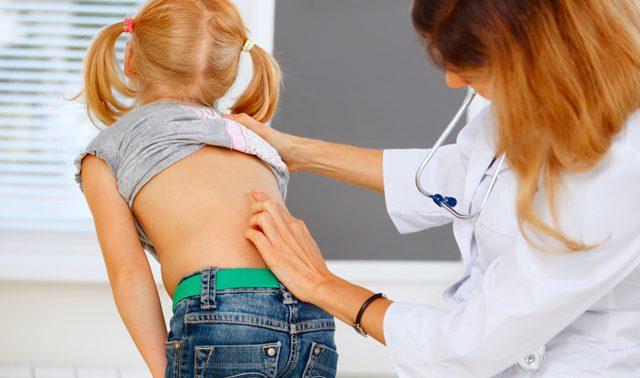 Почему девочки чаще болеют сколиозом