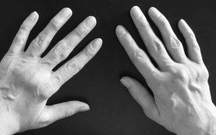 Роль МРТ в выявлении воспаления у пациентов с ревматоидным артритом